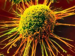 Онкологические заболевания могут проявиться спонтанно