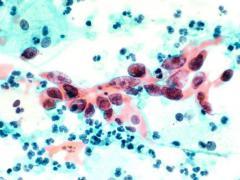 Повышенный уровень лейкоцитов говорит о наличии патогенных бактерий