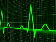Инфаркт миокарда является распространенным заболеванием сердца