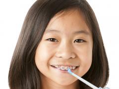 Наличием брекетов у детей или взрослых никого не удивишь