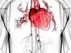 Микроинфаркт является формой ишемии