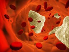Не все виды холестерина опасны для здоровья