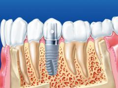 Импланты Adin подходят для всех типов кости