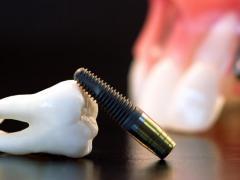 Перед зубным протезированием нужно пройти полное обследование