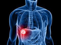 Под бронхитом понимается воспаление легких
