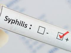 Симптомы сифилиса проявляются спустя время