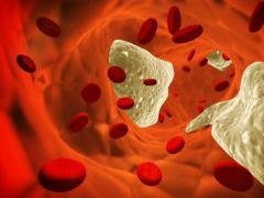 Атеросклероз появляется из-за скопления склеротических бляшек