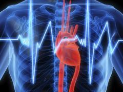 Тромбоэмболия легочной артерии является тяжелой сердечно-сосудистой патологией