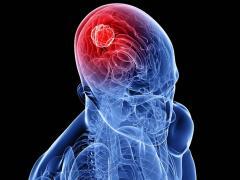 Рак головного мозга является страшным заболеванием