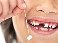 Дети и родители иногда ускоряют процесс выпадения зубов