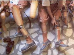 Течение и осложнения полиомиелита
