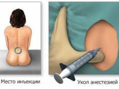 Перидуральная анестезия – безболезненные роды