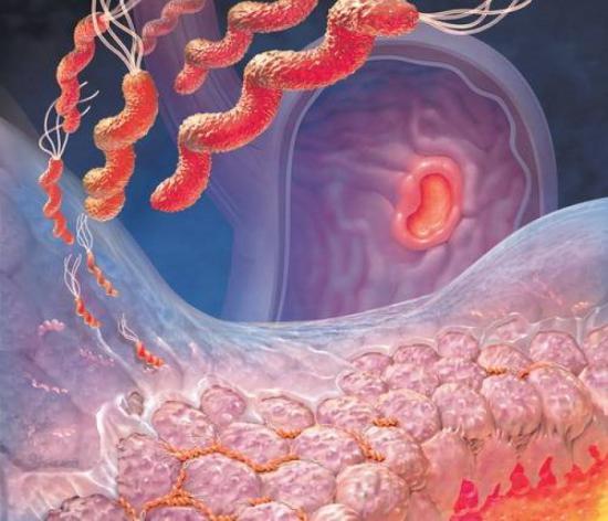 Если верить данным статистики, то на сегодняшний день от заболеваний, вызванных хеликобактером страдает от пятидесяти...