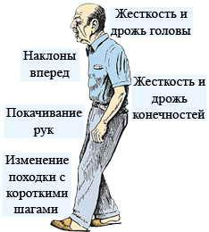 лечение болезни Паркинсона народными средствами