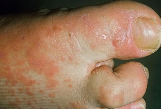 лечение красного плоского лишая