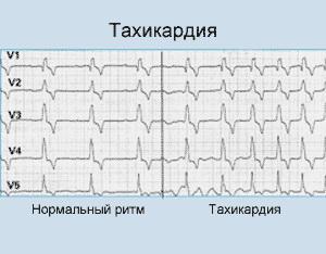 Умеренная тахикардия