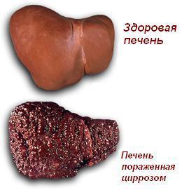 Цирроз печени на фото