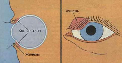 Глазные капли от ячменя