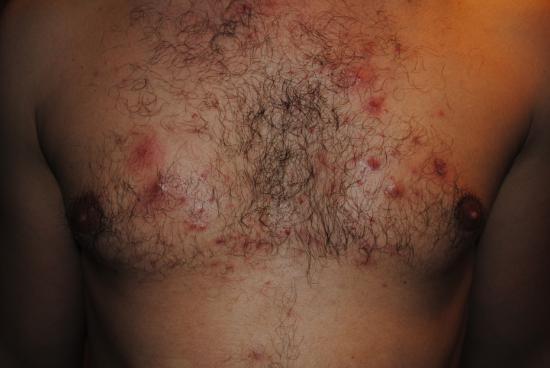 Сыпь на грудной клетке