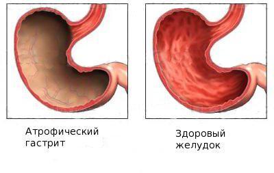 Субатрофический гастрит