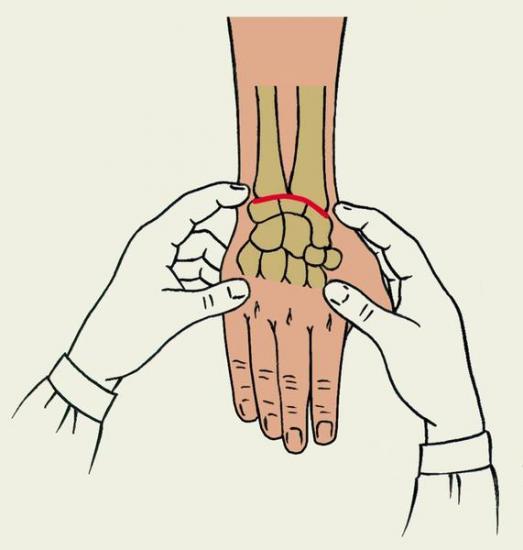 Упражнения после перелома лучевой кости