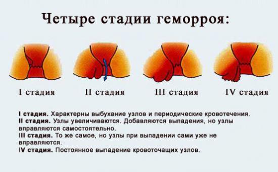 Свечи Гепатромбин