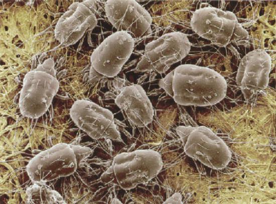 Чесоточный зудень (Sarcoptes scabiei) вызывает ...: atcm.pp.ua/allergiya-na-kozhe-foto.html