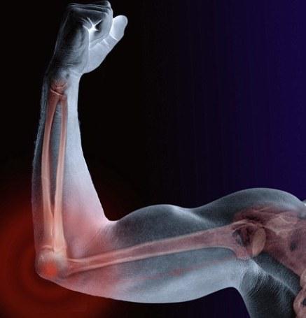 Неврит локтевого нерва и ее лечение