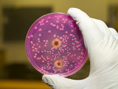 Чем может быть опасна молочница для женского организма
