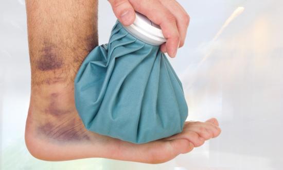 как лечить ушиб ноги