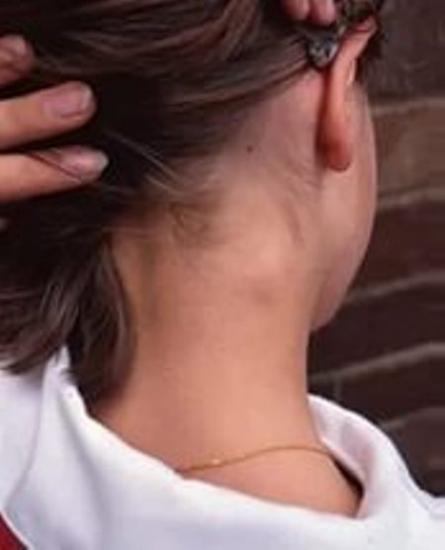 причины увеличения заушных лимфатических узлов
