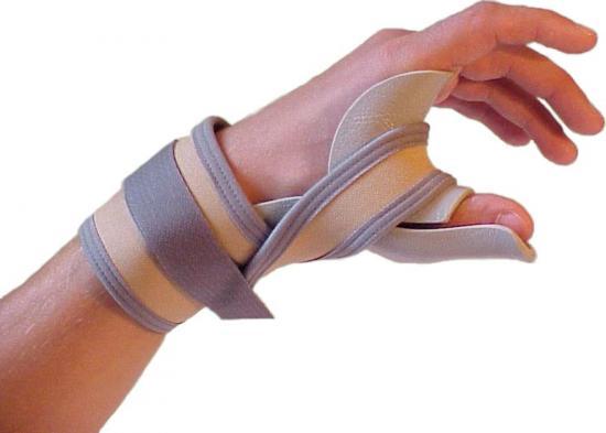 растяжение кисти руки