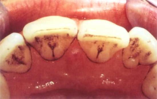черные полоски на зубах, лечение