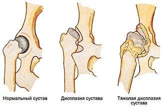 Подвывих тазобедренного сустава у взрослых симптомы