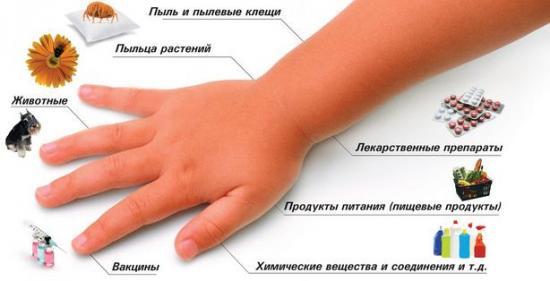 Как выглядит крапивница у детей, основные аллергены