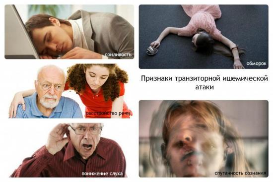 транзиторная ишемическая атака симптомы