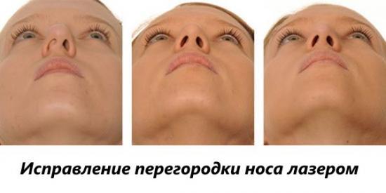 выпрямление носовой перегородки