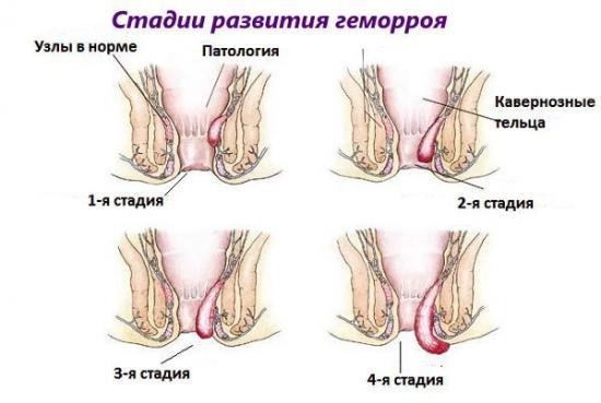 какие симптомы при геморрое
