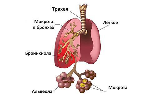 дыхательная гимнастика после пневмонии