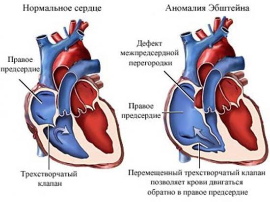 эхограмма сердца