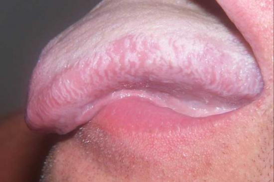 волосатая лейкоплакия языка