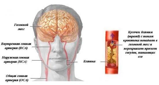 чем лечить атеросклероз сосудов головного мозга