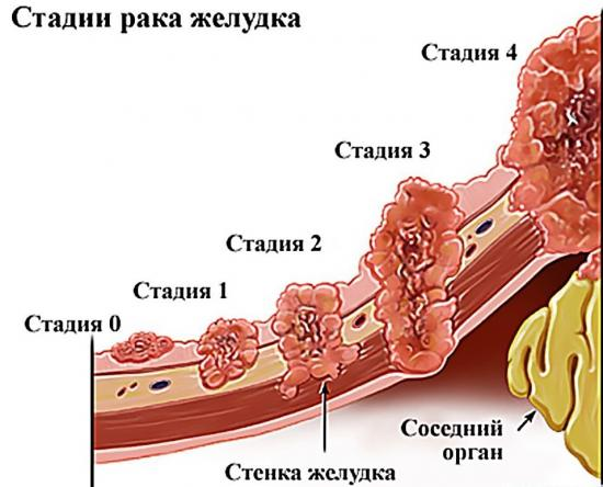 расшифровка диагноза рака