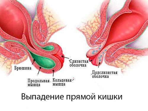 выпадение слизистой прямой кишки фото