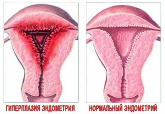 очаговая гиперплазия эндометрия лечение4