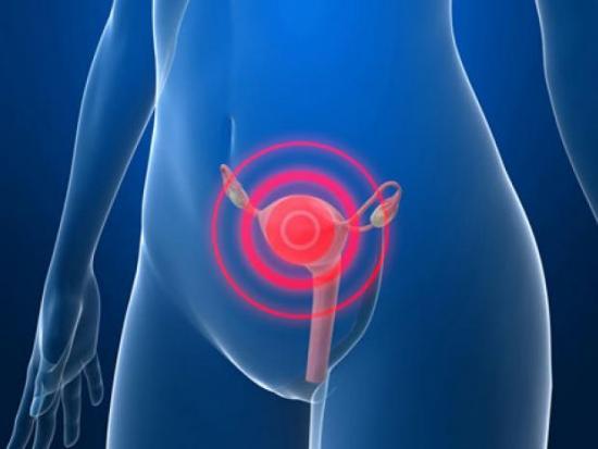 лечение воспаления яичников Воспаление яичников у женщин - симптомы и лечение болезни.