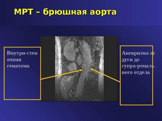 атеросклероз брюшного отдела аорты