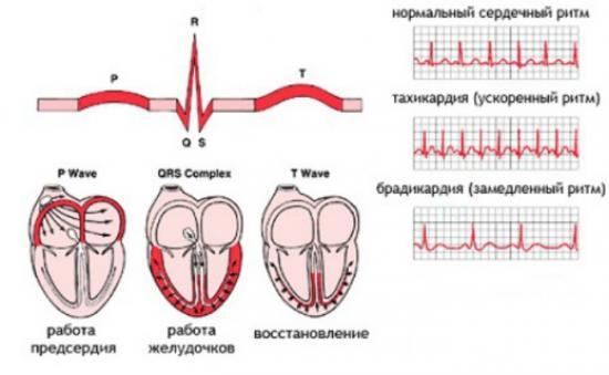 тахиаритмия синусовая у детей