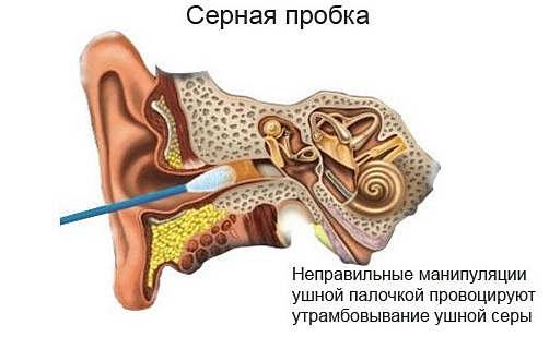 средство от ушных пробок