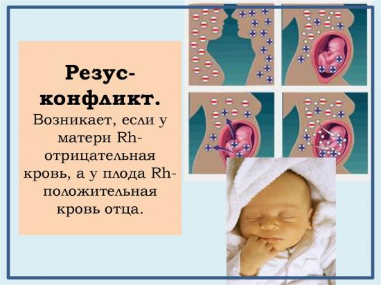первая группа крови резус отрицательный